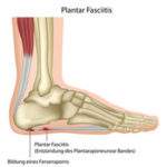 Heel pain  – effective treatment in Hobart